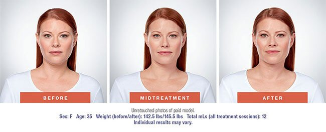 Remove Your Double Chin with KYBELLA® Treatments in Maryland